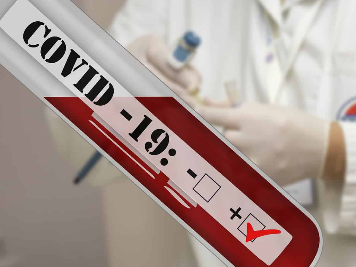 Covid testing: Shortage of medical staff at diagnostic centers, long queues, public scare