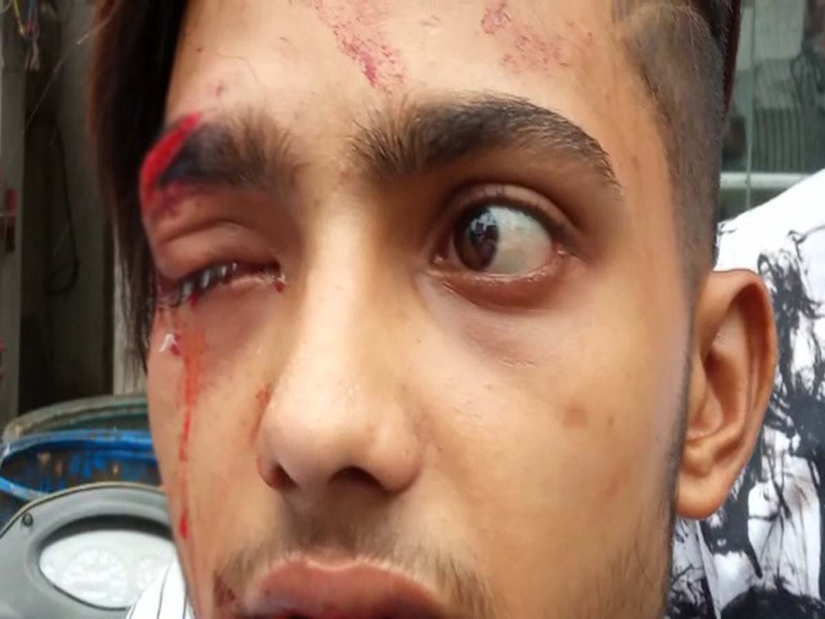 Hyderabad: Yet another youth allegedly assaulted by cop in Asifnagar