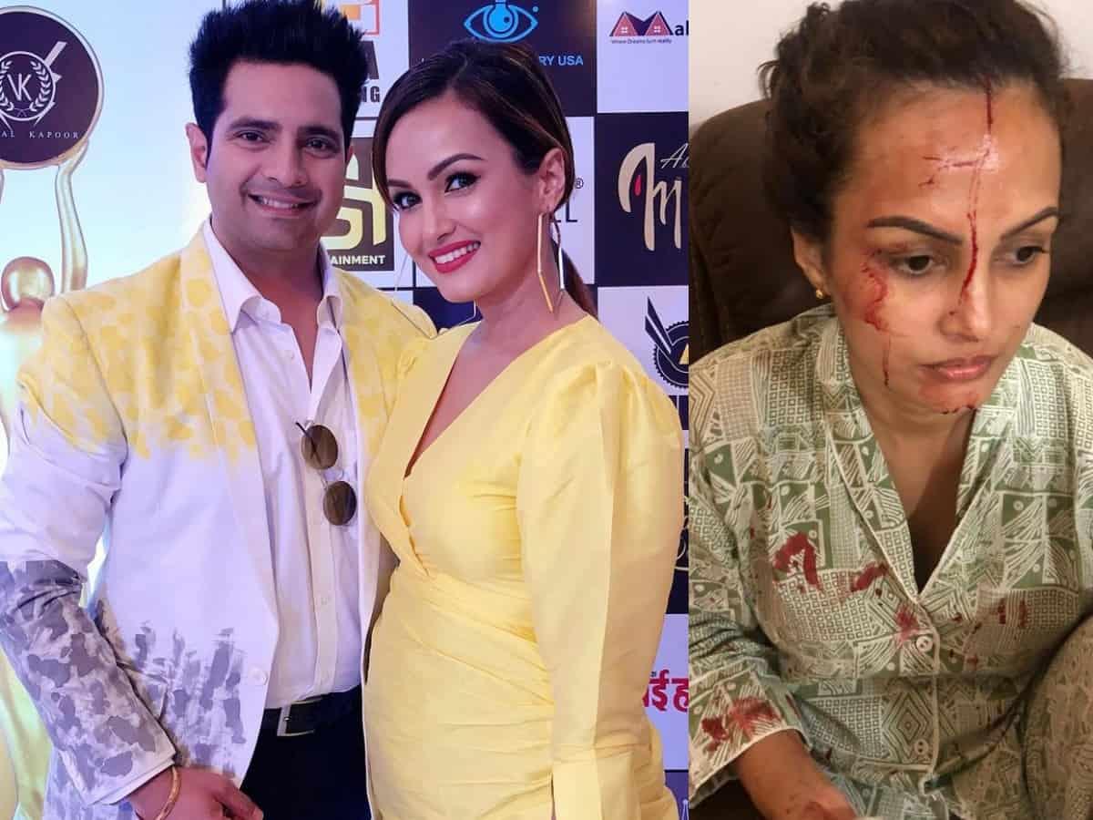 Nisha Rawal accuses Karan Mehra of having an affair, beating her